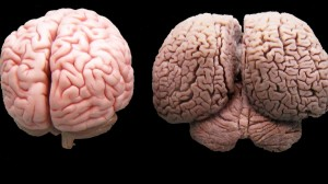 Human vs Dolphin Brain